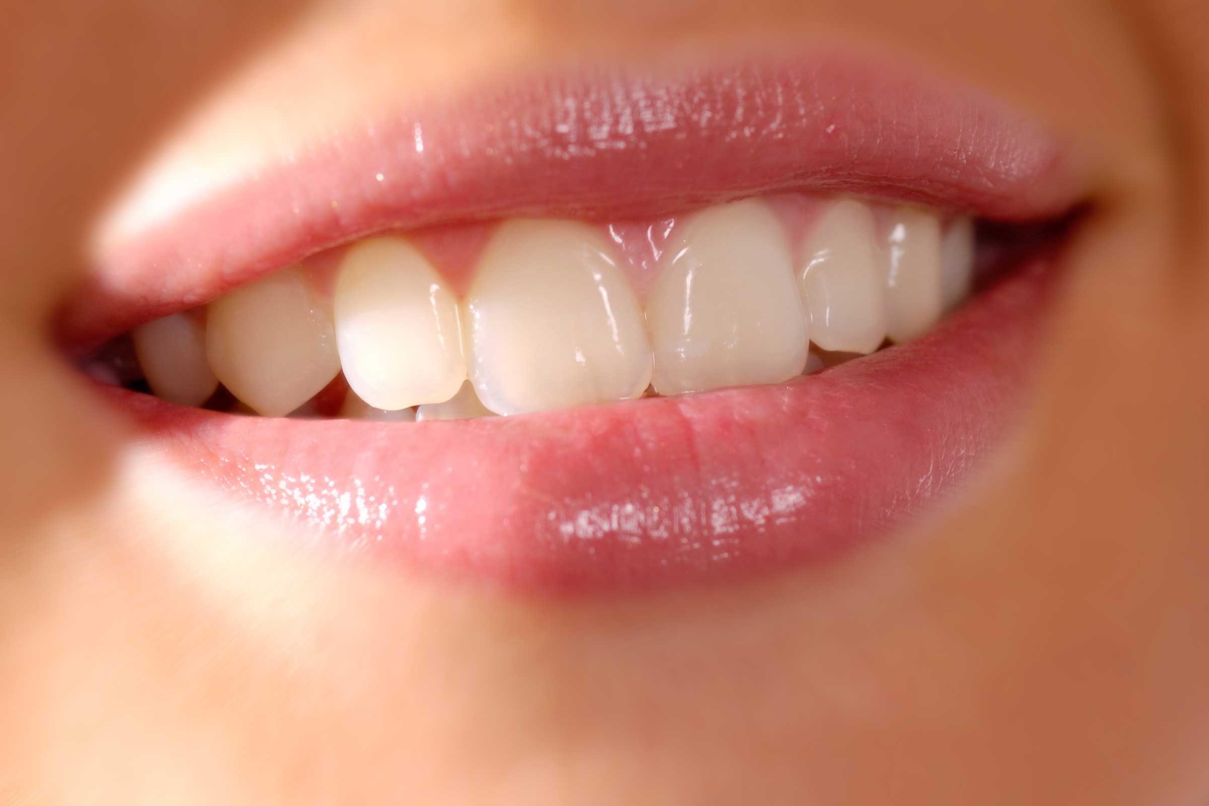 Whiten teeth on the cheap