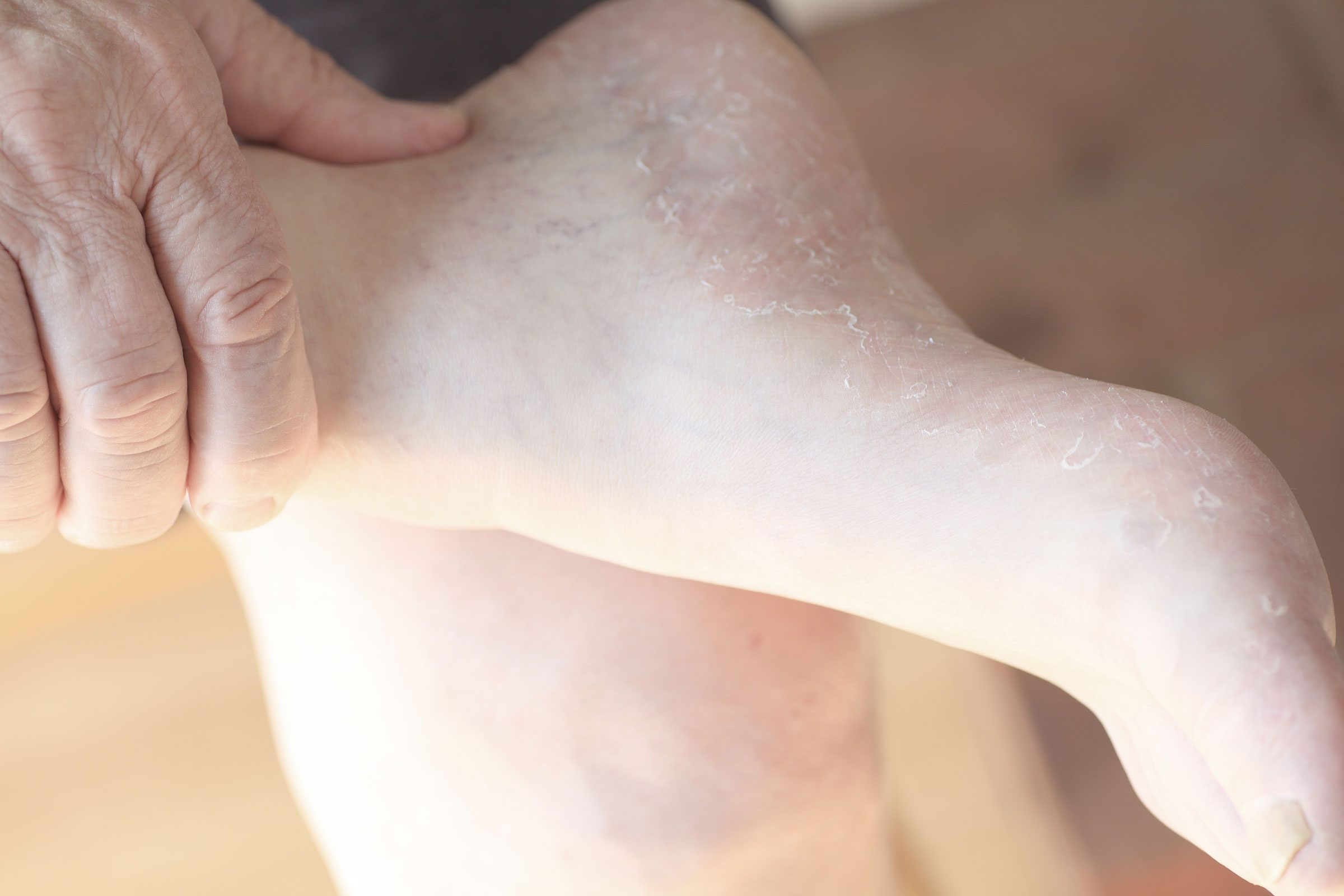 You notice: Dry, flaky feet