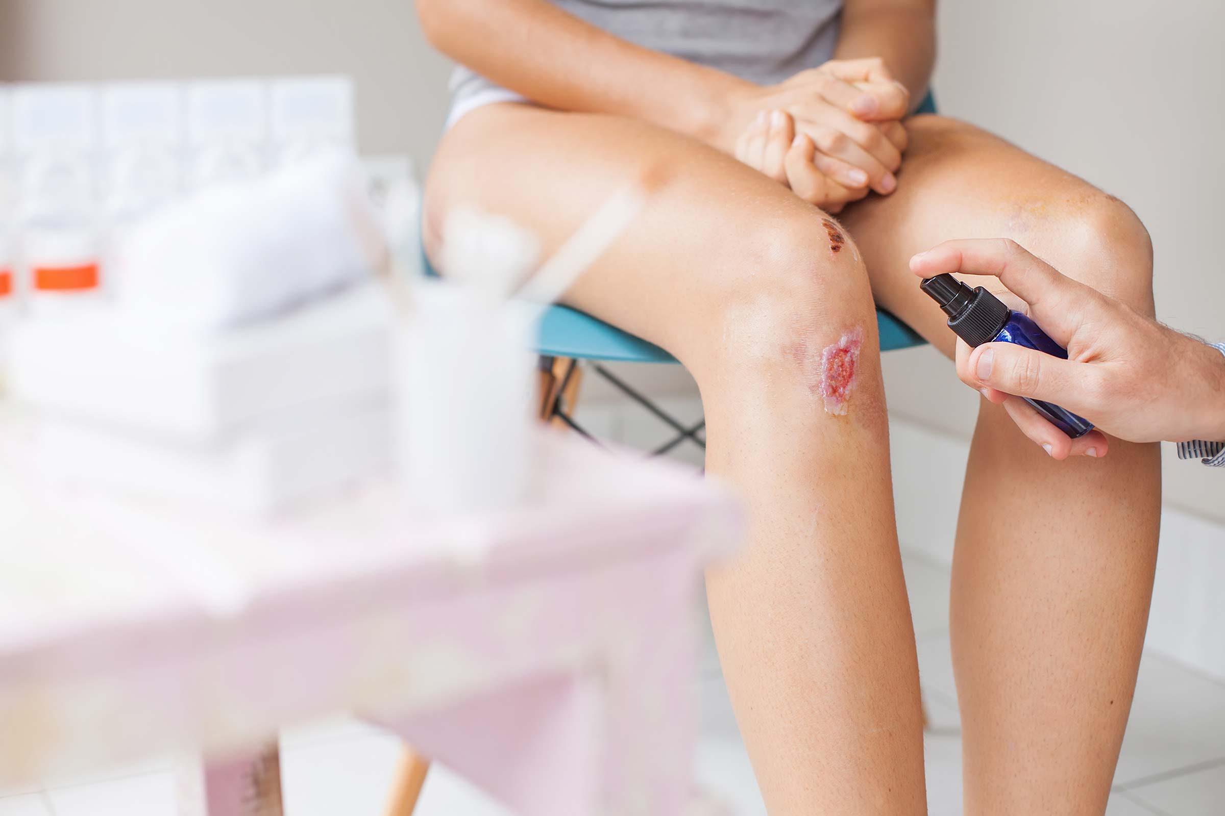 Des débris encore coincés sous votre peau peuvent créer de l'infection
