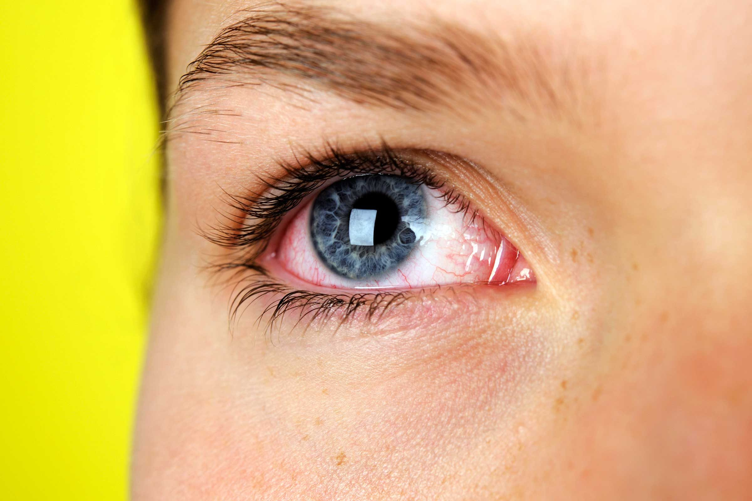 Natural Way To Relieve Dry Eyes