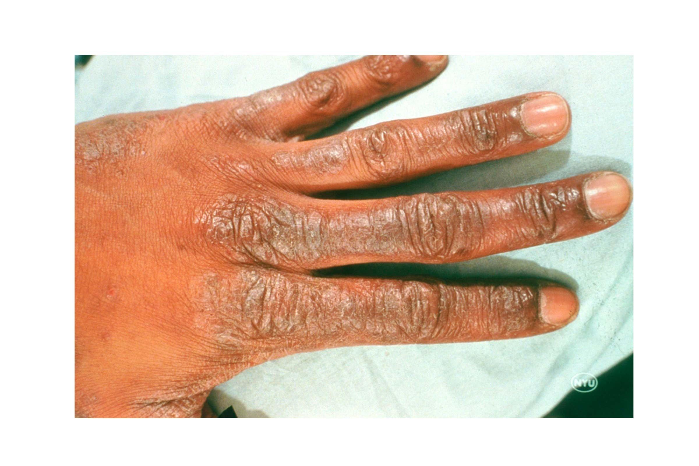 Varieties of Eczema | Types of Eczema | National Eczema ...