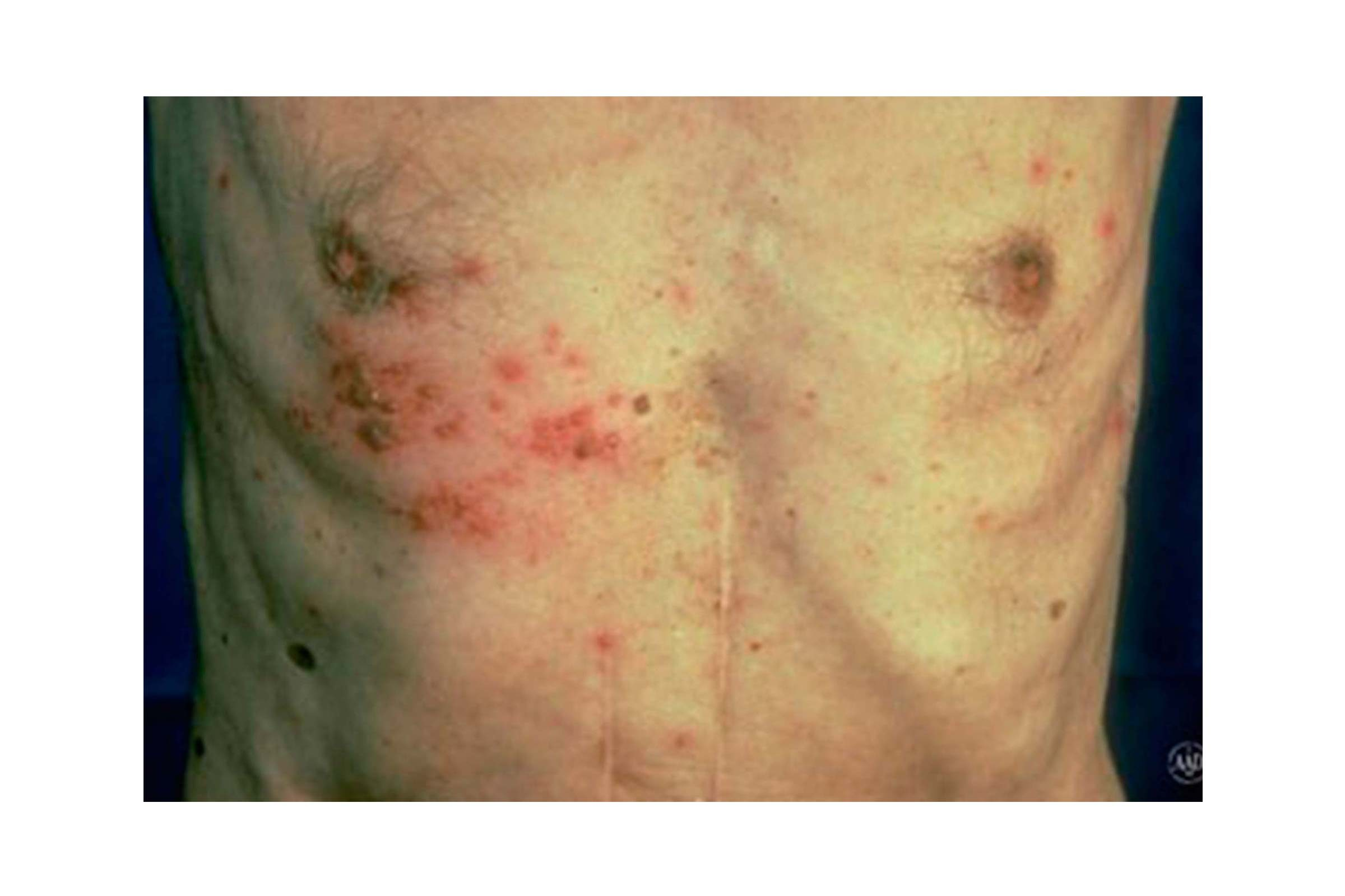 What s that rash how to id common rash symptoms reader s digest