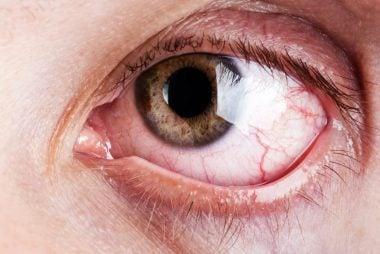 02_Allergies_Reasons_You_have_bloodshot_eyes_