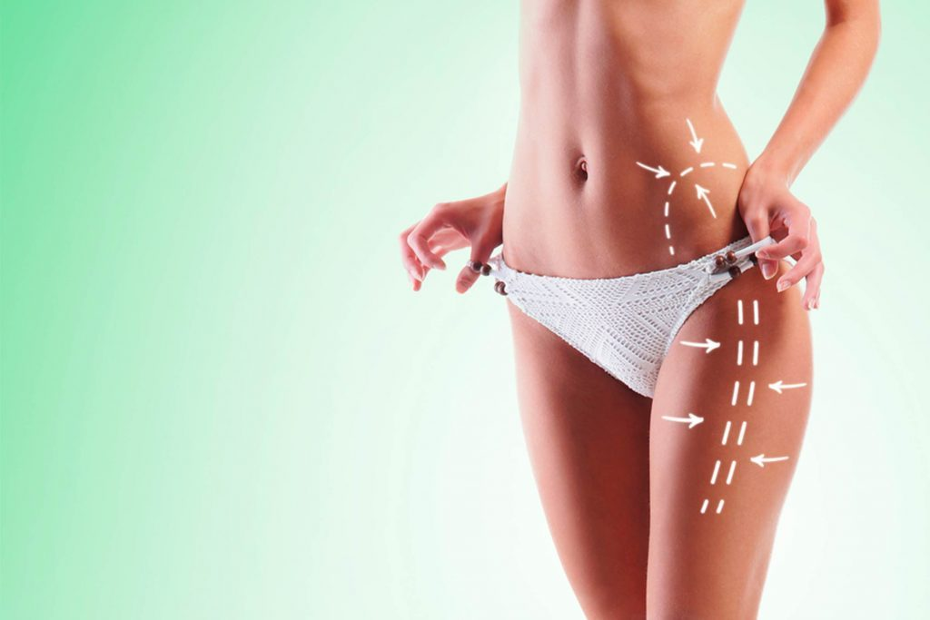 Here's-How-Liposuction-Totally-Changed-While-No-One-Was-Paying-Attention