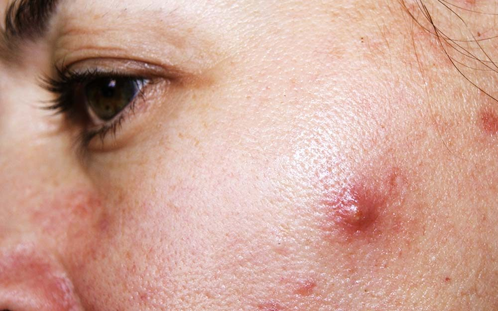 01-cystic-acne-How-To-Get-Rid-of-Cystic-Acne-Overnight_599026772-vialik-ft.jpg (1000×625)