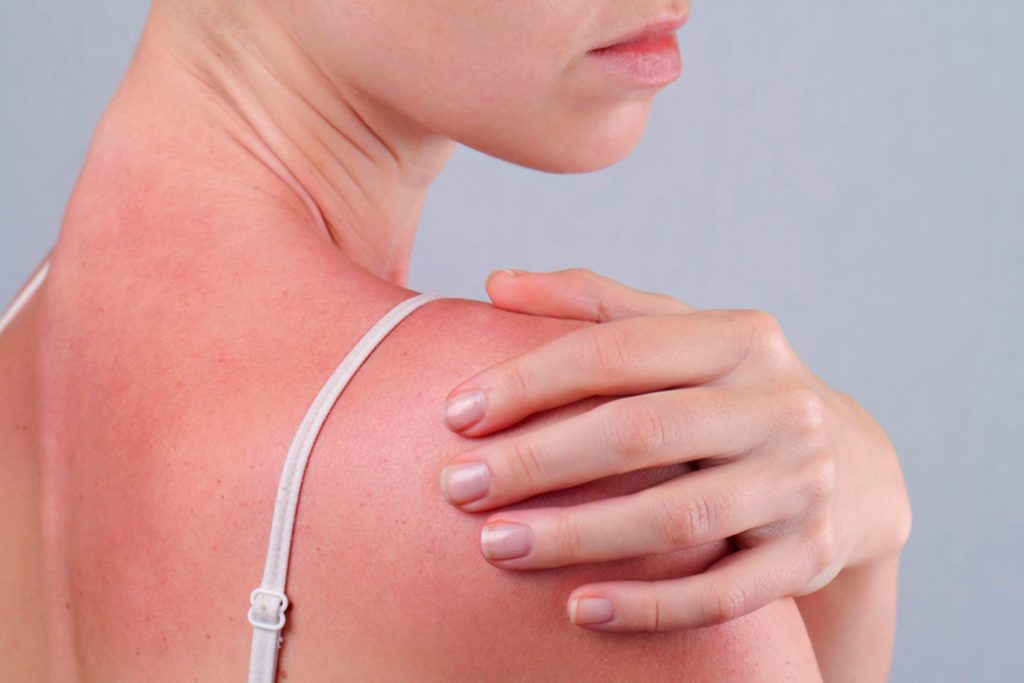 Silent-Signs-Your-Sunburn-is-Actually-Sun-Poisoning