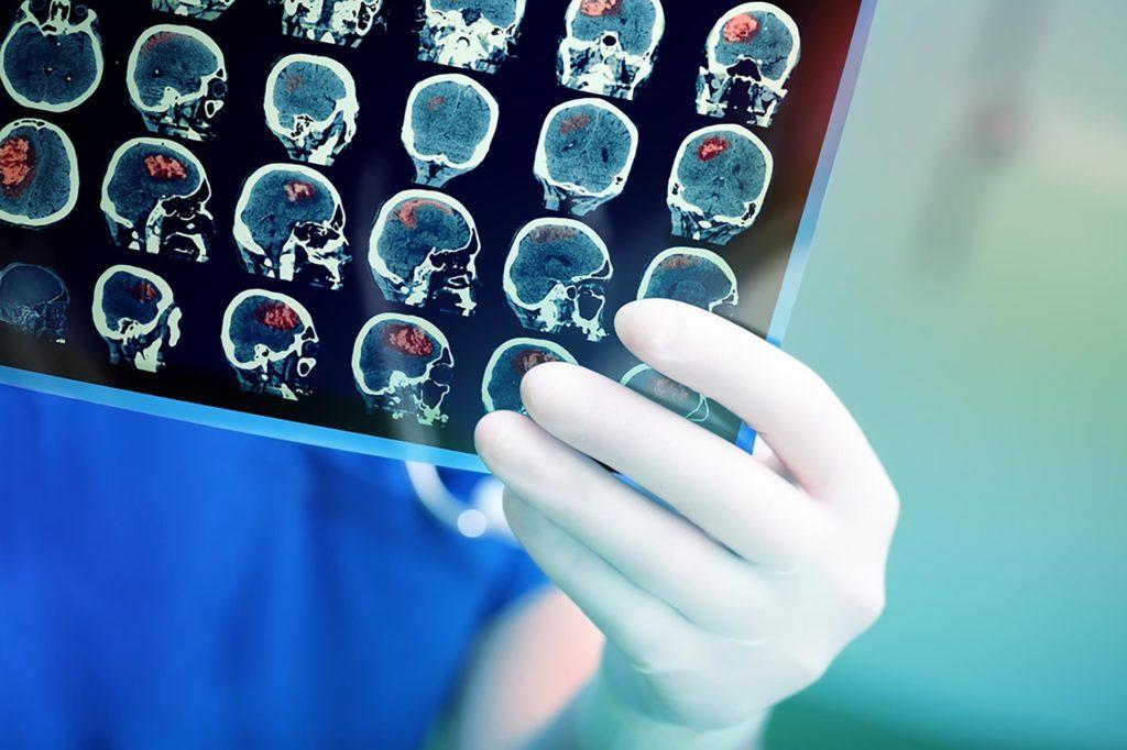 Autant la génétique que les différences dans le cerveau jouent un rôle dans la dyslexie