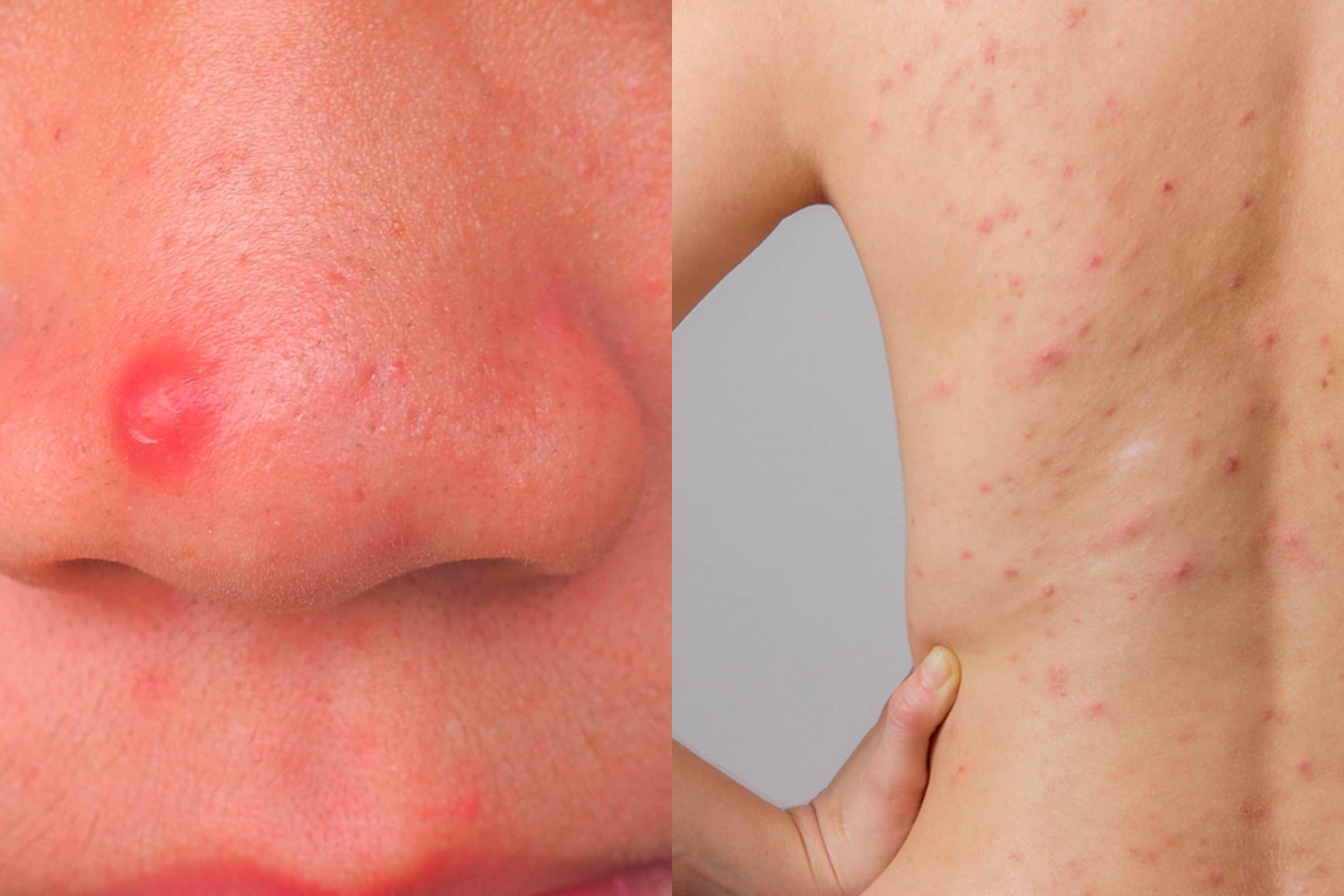 Ce que révèle l'emplacement de l'acné