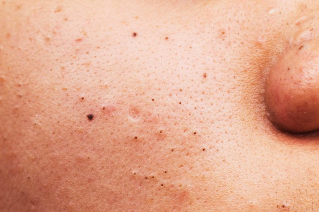the truth about the blackhead removal trick the internet can't, Skeleton
