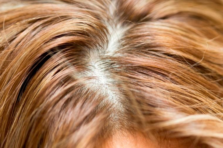 01-7 Super-Damaging Hair Combing Mistakes You Don't Even Know You're Making_564109834
