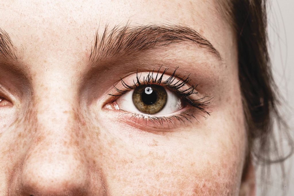 What-Eye-Freckles-Reveal-About-Your-Health