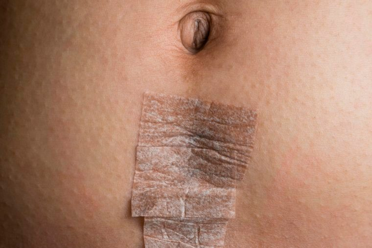 09-physical-Reasons You're Not Getting Your Period (and You're Definitely Not Pregnant!)_270201272-Scott-Dumas